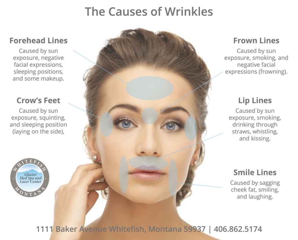 how to stop wrinkles on face